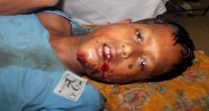 চাঁদপুরের হাইমচরে গাছ থেকে পড়ে কিশোর আহত
